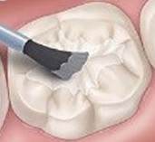dentalsealantapplication-Brush-Cropped